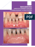 Gingivales Libres