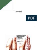 Varicocele (1)