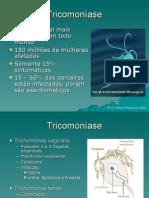152301_Tricomoníase