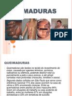 SEMINARIO QUEIMADURAS