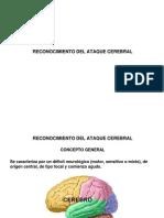 Reconocimiento Del Ataque Cerebral
