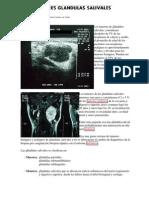 Tumores de Glandulas Salivales