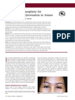 Subbrow Blepharoplasty for Upper Eyelid Rejuvenation in Asians
