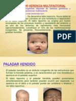 ANOMALÍAS POR HERENCIA MULTIFACTORIAL