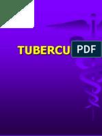 Tuberculoza+pulmonara