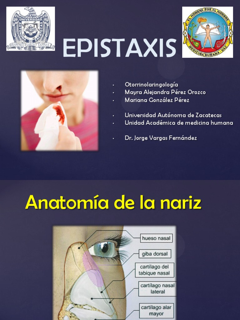 Epistaxis Sss