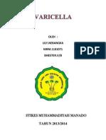 Askep Varicella