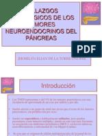Tumores pancreáticos