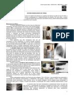 RADIOLOGIA 02- Estudo radiológico do tórax  - MED RESUMOS (JAN-2012)