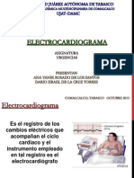 electrocardigrama modificado
