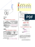 A Simplified ECG Guide