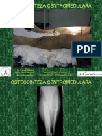 Osteos CM