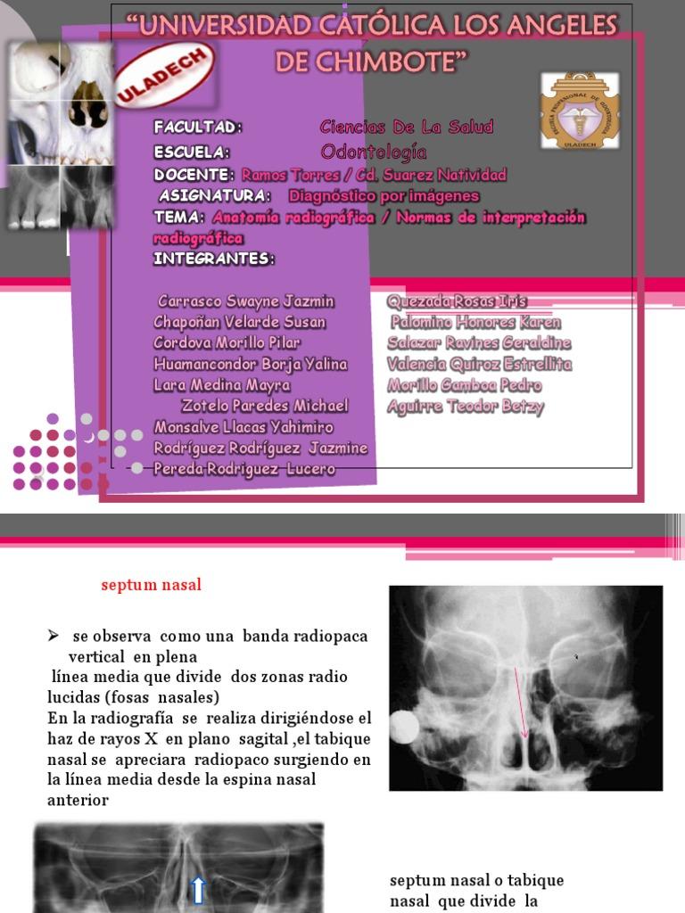 Anatomia Dental Radiografica