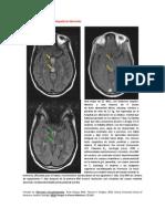 A primera vista 381 (Encefalopatía de Wernicke).docx