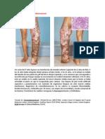 A primera vista 382 (Cromoblastomicosis).docx