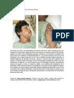 A primera vista 388 (Síndrome de Stevens-Johnson).docx