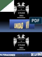 Unidad Vii Alteraciones Radiolucidas y Radiopacas