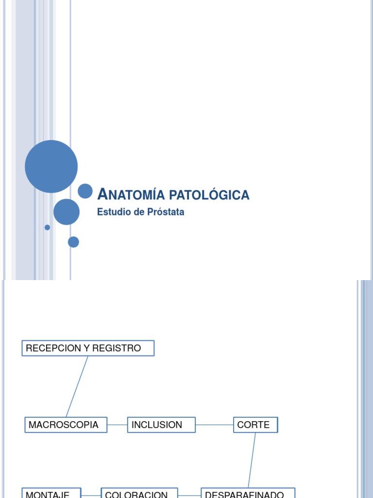 Estudio de Prostata-Anatomia Patologica