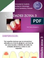 Cavidades Zona 3