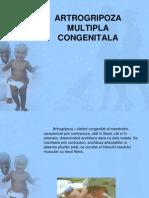 ARTROGRIPOZA-MULTIPLA-CONGENITALA