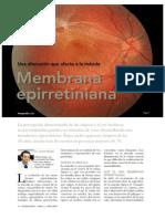 Membrana_Epirretiniana