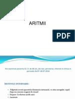 Aritmii