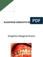 Klasifikasi Gingivitis Kronik
