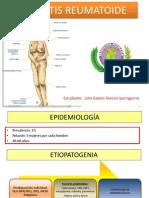 Artritis reumatoide-1
