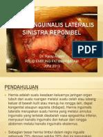 Hernia Inguinalis Lateralis Sinistra Reponibel