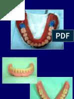 prevencion en protesis II.ppt
