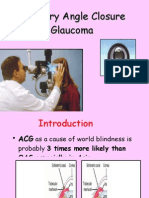 Primary Angle Closure Glaucoma for UGs