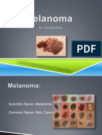 melanoma pp
