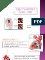 Endocarditis[1]