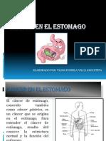 Cancer en El Estomago