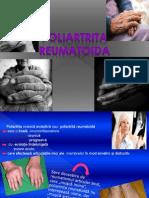 Poliartrita Reumatoida- 2003
