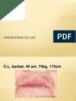 Prezentare+Astm