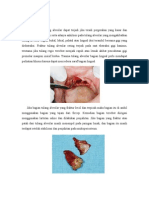 Fraktur Tulang Alveolar