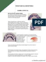 Barras en Protesis Removible