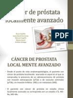 Cancer de Prostata Localmente Avanzado