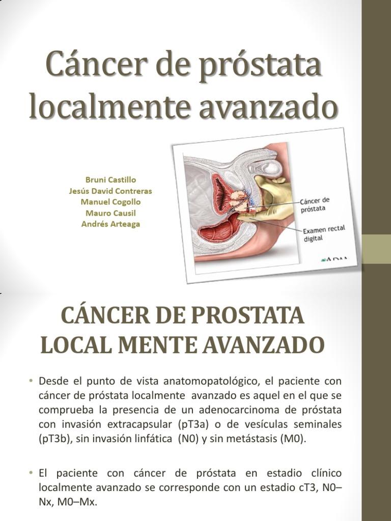 cancer de prostata avanzado