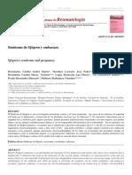 Síndrome de Sjögren y embarazo.pdf