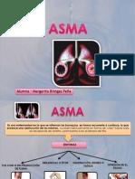Presentación asma