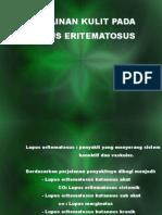 Lupus - Hesti