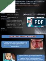 Patologia Odontoamigos Paladar Hendido