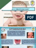 Bocio y Tirotoxicosis 3