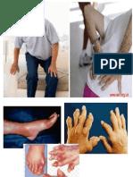 penyuluhan artritis