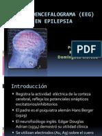 electroencefalograma.pptx