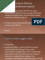 Epulis Fissuratum (Fibrous Hyperplasia