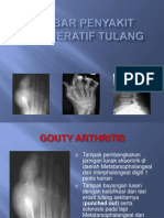 Radiologi Degeneratif Tulang