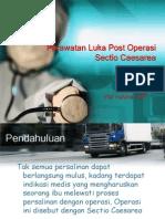 Perawatan Luka Post Operasi Sectio Caesarea(1)
